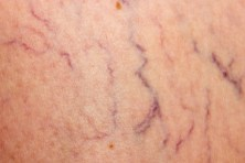what causes varicose veins and spider veins