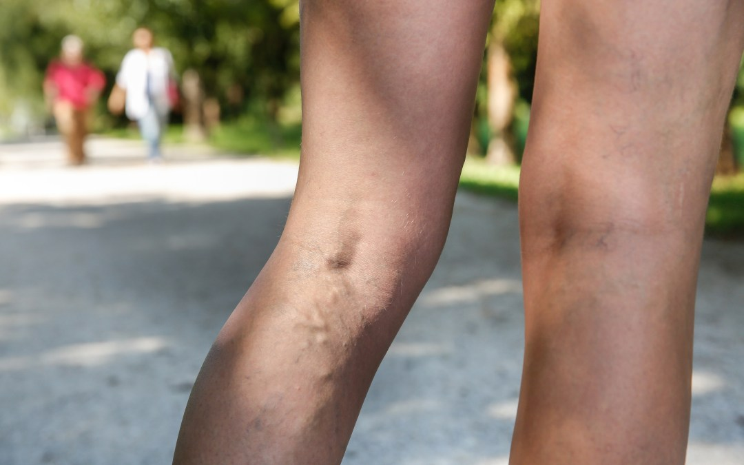 The Best Leg Workouts For Varicose Veins