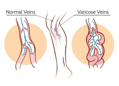 Venorex varicose veins treatment cream