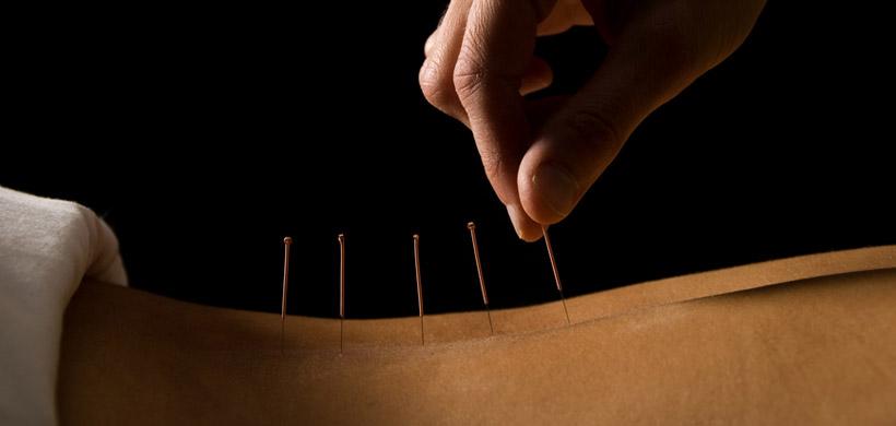 """acupuncture pictures""的图片搜索结果"
