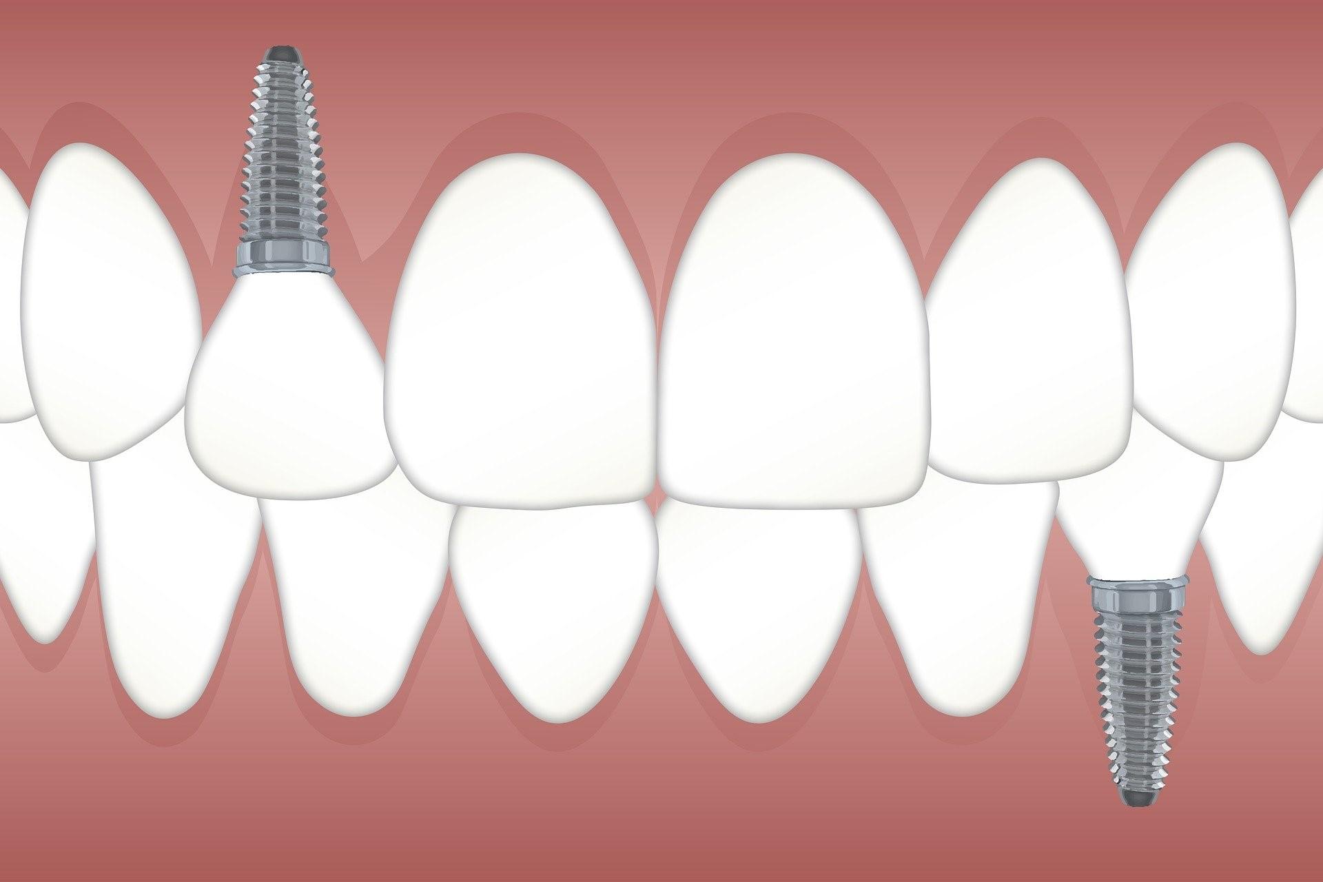 ig-dental-implantology