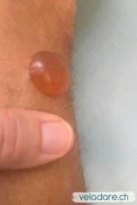 Willi est allergique aux chitras (mini moustiques) et il a plein de cloques. La plus grande a la grosseur de mon pouce!