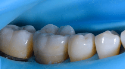 immediate buccal view post cementation