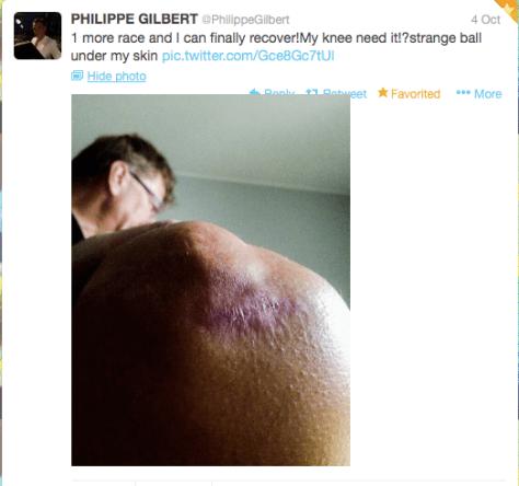 G Gilbert knee