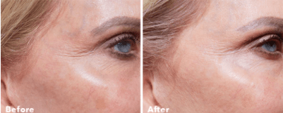 a reduction in fine lines with AnteAGE Home Microneedling System