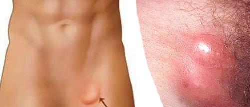 Уплотнение в паху у мужчин справа. Причины появления шишки в паху у женщин (слева, справа). Лечение лимфоузлов