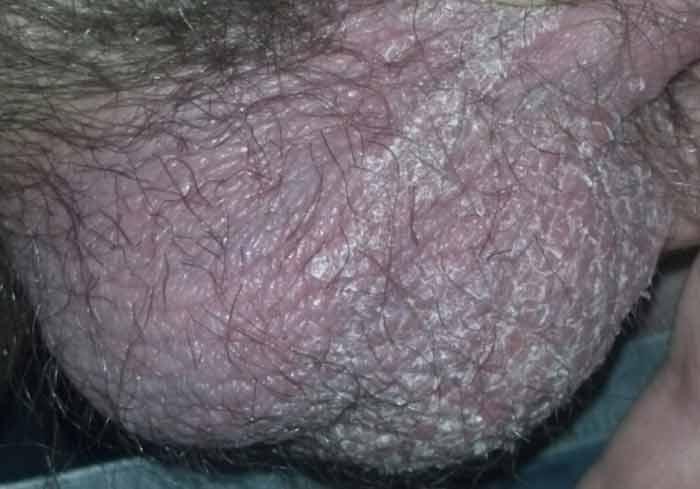 Болезни на яичках в картинках