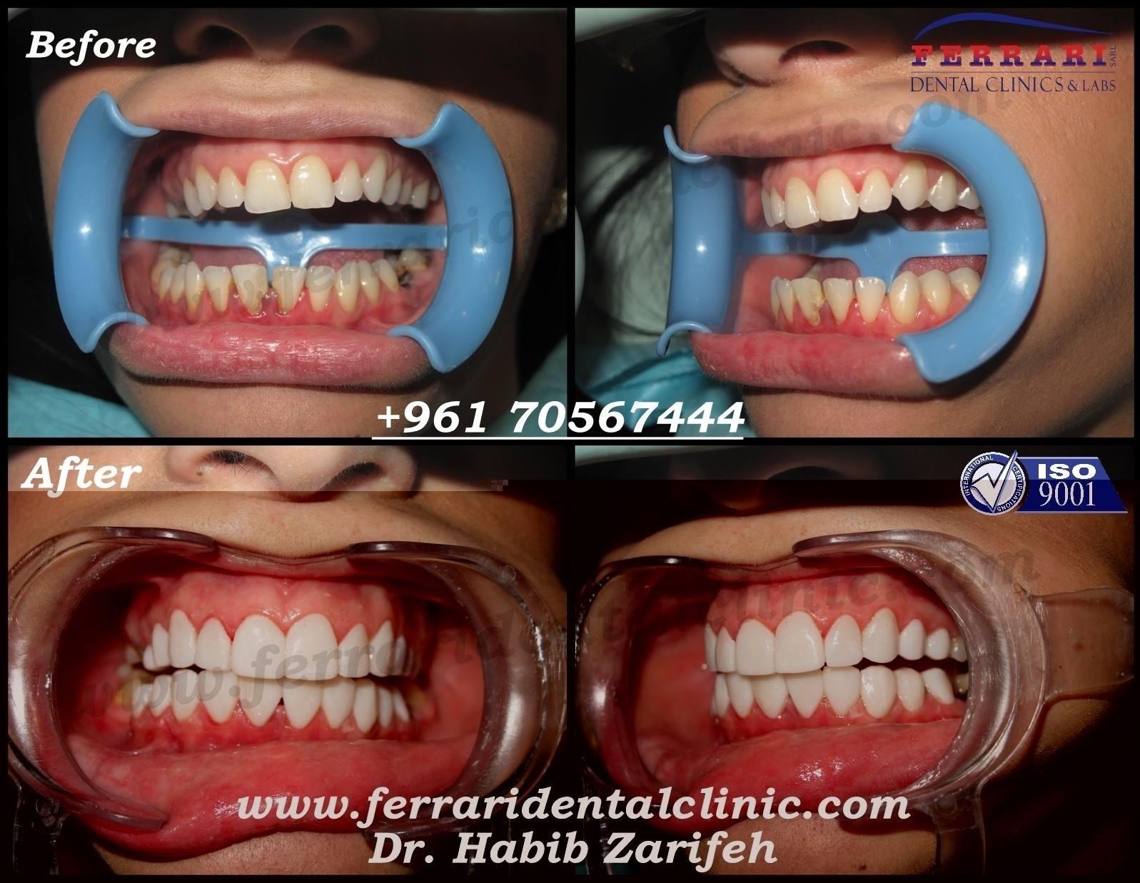 Visit Dental Clinic For Teeth Whitening Or Dental Implants Veneers Hollywood Smile Lebanon Dentist Dr Zarifeh The