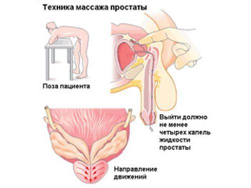 ar gali atsirasti erekcija atliekant prostatos masažą)
