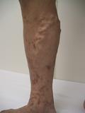 伏在型下肢静脈瘤