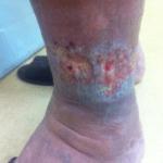 下肢静脈瘤によるうっ滞性皮膚炎