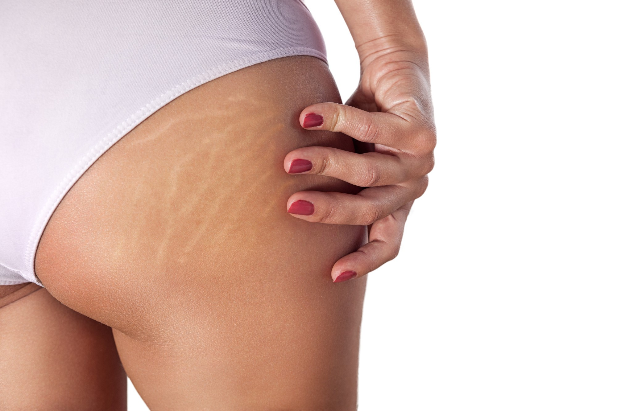How To Reduce The Appearance Of Cellulite 5 Tips To Hide Those Butt Dimples