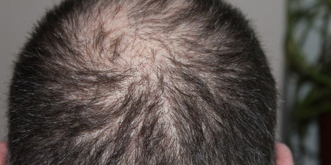 Hair loss solutions : All you should know