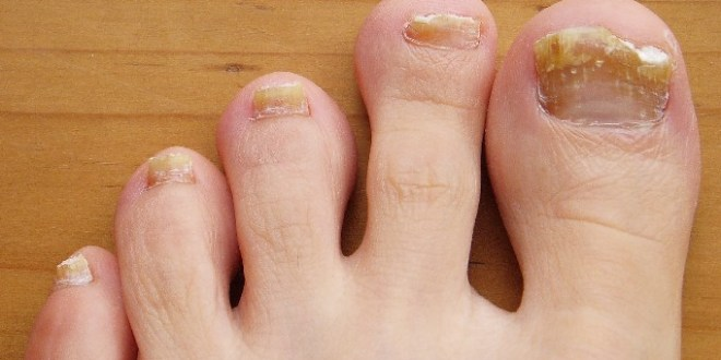 What are probiotics for toenail fungus?