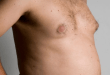 What are the things you need to know about Gynecomastia and Natural Moobs Curing Solutions.