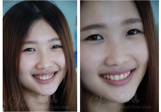 水雷射牙齦整形 牙冠增長術+牙齦淨白術 ★ 自然大方的笑容 ★ 美少女的夢想 ★ 小米 ~ | 似真牙醫