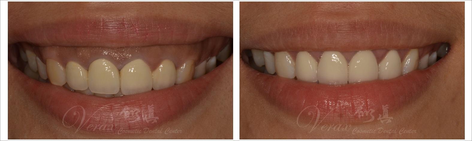 水雷射牙齦整形+美學全瓷贗復 ★ 打造女神系氣質 ★ 小文 ~ | 似真牙醫