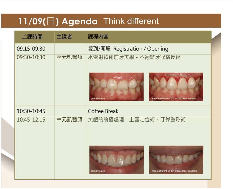 笑齦終極處理絕招大公開!國際 WCLI 講師 林元凱院長榮幸受邀到臺中,分享水雷射微創美學演講。 | 似真牙醫