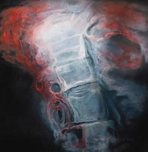 Spine Study 72