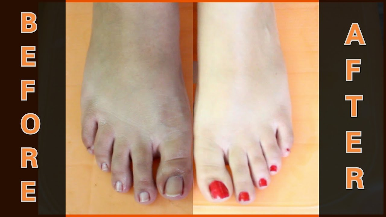 How To Do Feet Whitening Pedicure at Home