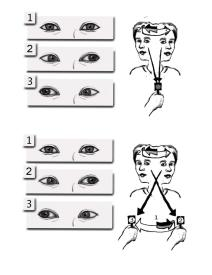 eye exercise Vestibular Rehabilitation Therapy