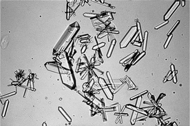 MICROSCOPIC ASPECTS OF URINALYSIS AND DISCUSSION OF ...