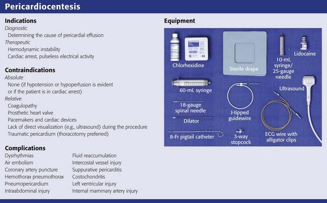 Pericardiocentesis  Veterian Key