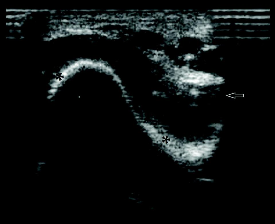 Ultrasonograph displaying the tarsocrural joint, depicts evidence of sepsis, including the presence of fibrin and cells within the synovial fluid.