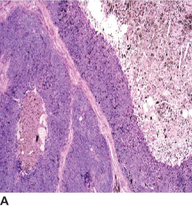 Micrograph of a feline basal cell tumor with multilobulated mass and central necrosis.