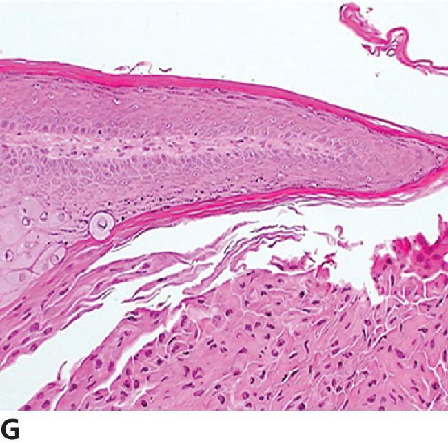 Micrograph of canine papilloma (infundibular subtype) displaying marked viral cytopathic effect at the base of the infundibulum and accumulation of parakeratosis within the infundibular lumen.