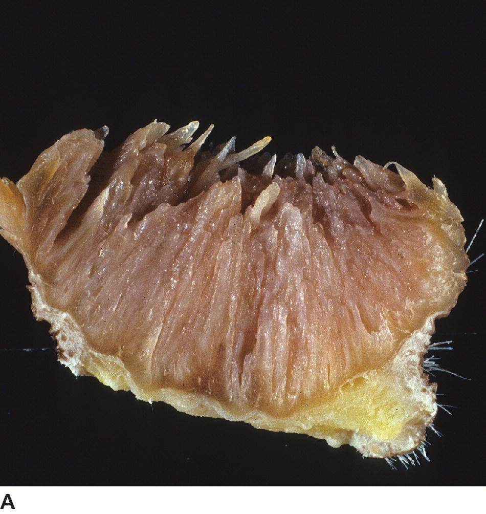 Photo of the cut surface of gross lesion in canine inverted papilloma.
