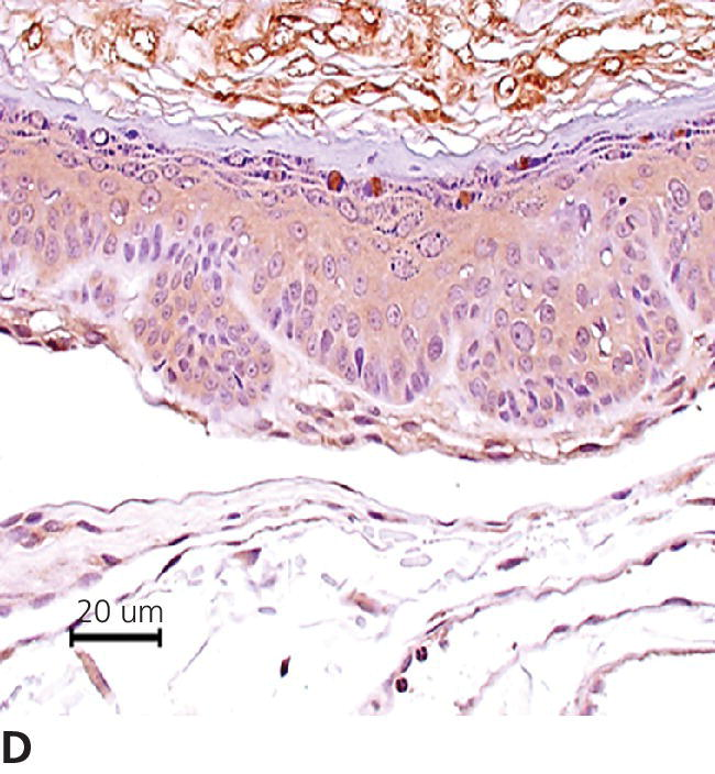 Micrograph of canine pigmented plaque through immunohistochemistry demonstrating papillomavirus within the granular cell layer.