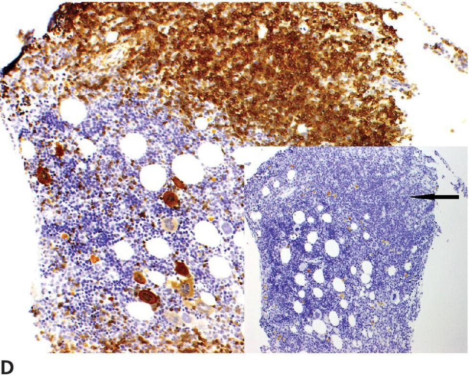 Micrograph of the marrow core with CD79a IHC stain. Inset: Marrow core with CD3 IHC  displaying the area of lymphoid proliferation (pointed by arrow).
