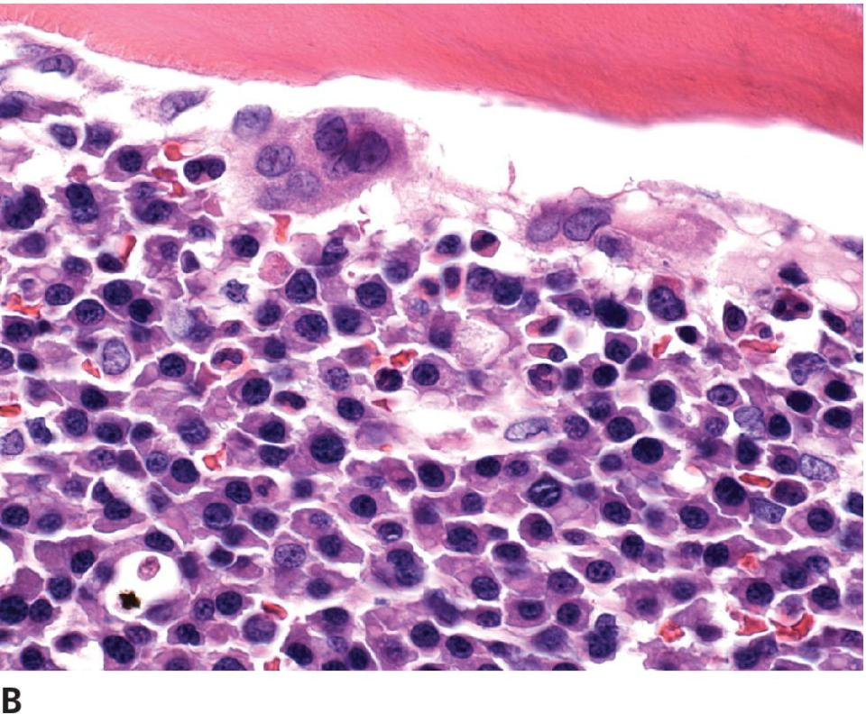 Micrograph of myeloma displaying distinct cell borders, abundant cytoplasm, and the cells are well differentiated. Nuclei are uniform and eccentric with few binucleated cells.