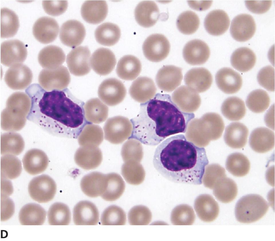 Micrograph of large granular lymphocytes (LGL) in a dog's blood, displayed in methanolic Romanowsky automated stain. Intracytoplasmic granules are prominent and easily identified.