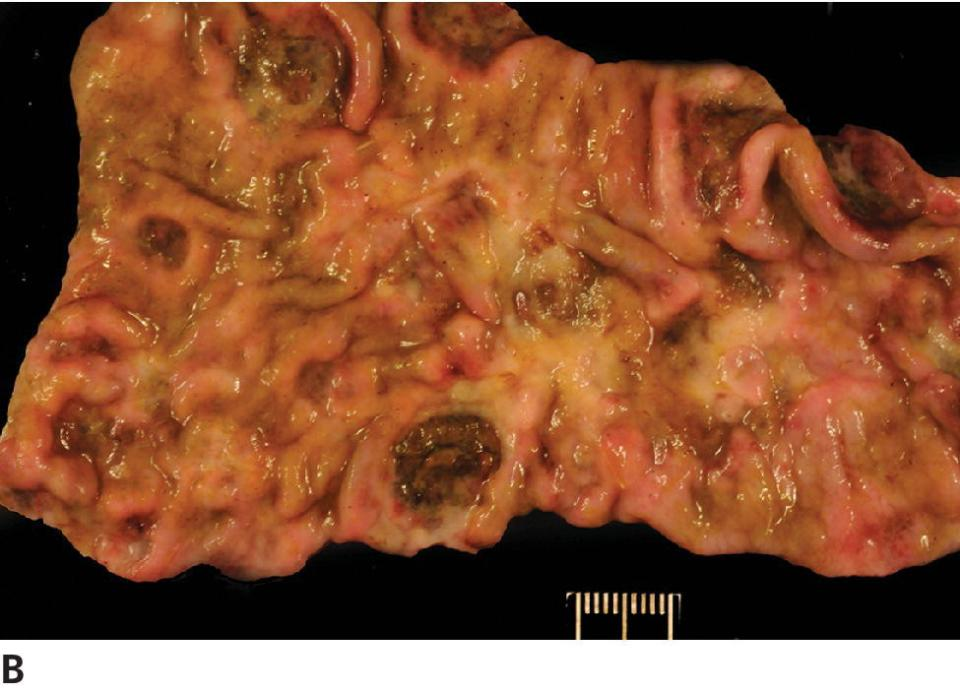 Photo of a horse's intestine.