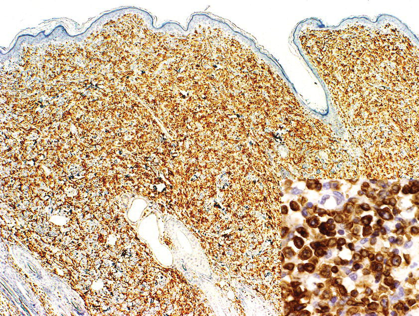 Micrograph of anaplastic large cell lymphoma in a dog displaying CD3 with the tumor positively stained, diffusely and strongly. Inset: Demonstrating higher magnification.