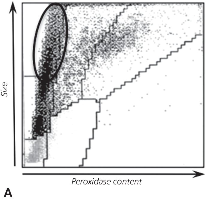 Schematic of leukocyte size versus peroxidase plot depicting a population of large cells having little peroxidase content (circled).