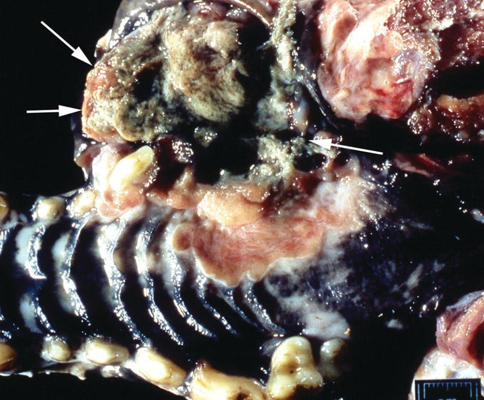 Photo of squamous cell carcinoma in a dog's mouth displaying the neoplasms as a raised plaque with central ulceration and necrosis (arrowed).