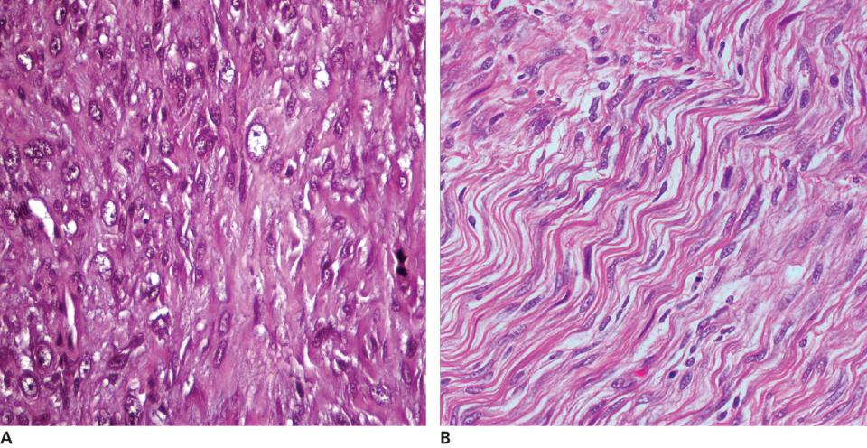 2 Micrographs of fibrosarcoma in a dog's mouth with neoplasm of spindle-shaped cells (left) and fibrosarcoma in a golden retriever dog with appearance of the neoplastic cells (right).