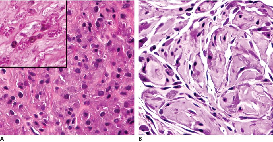 2 Micrographs of (a) granular cell tumor in dog's mouth illustrating cells with eosinophilic cytoplasmic granules in periodic acid Schiff (inset) and (b) polygonal cells with amphophilic granular cytoplasm.