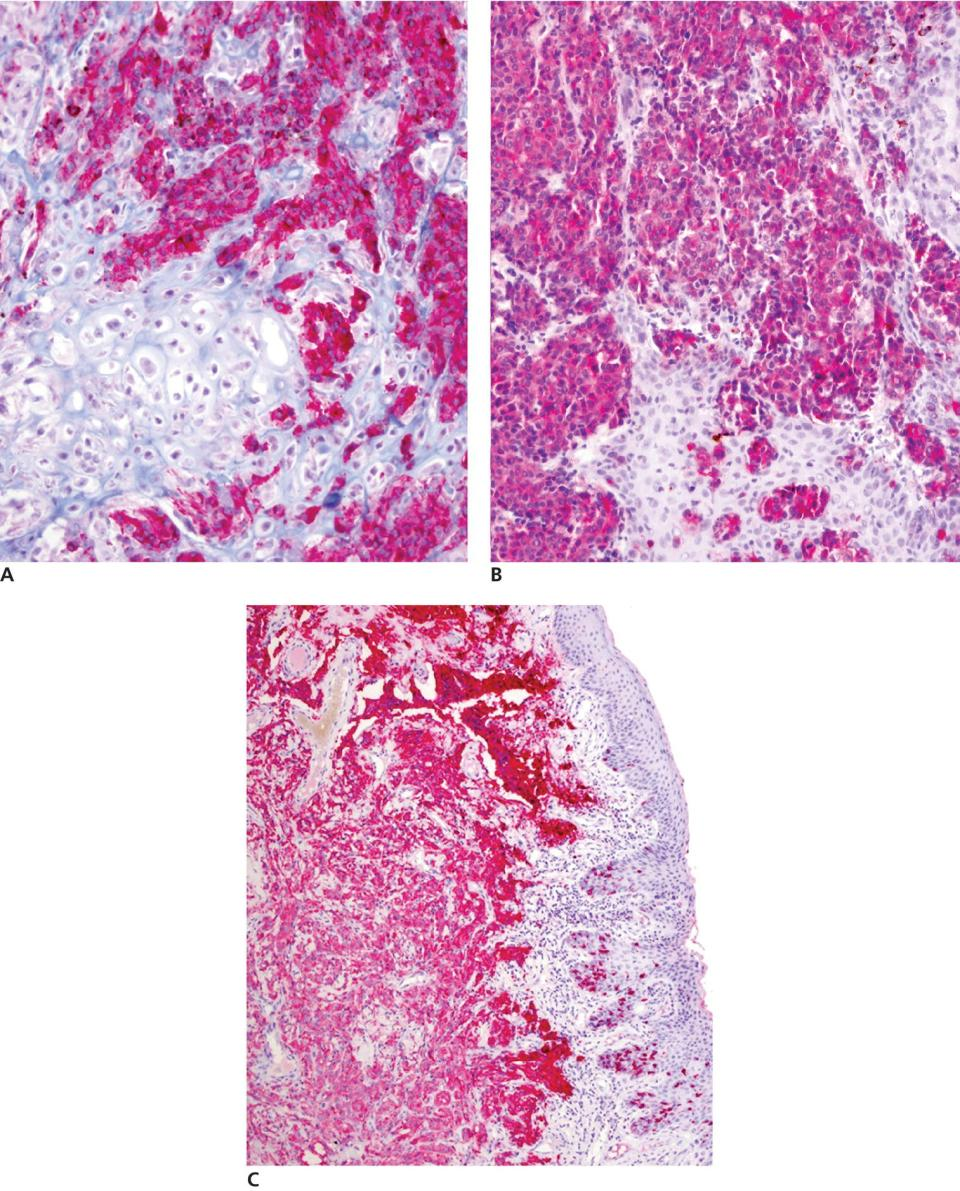 3 Micrographs of malignant melanoma in a dog's mouth, with the antibody cocktail composed of PNL‐2, Melan‐A, TRP‐1, and TRP‐2 (a), cytoplasmic immunostaining (b), and cytoplasmic immunostaining for PNL‐2 (C).