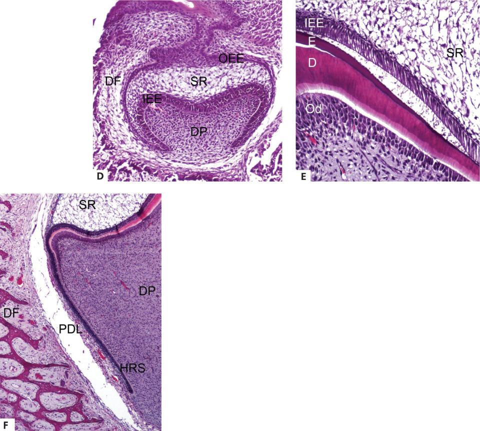 3 Micrographs of tooth development displaying concurrent with changing shape (d), odontoblasts from the ectomesenchyme of the dental papilla and deposit dentin (e), and enamel epithelium growing downward (f).