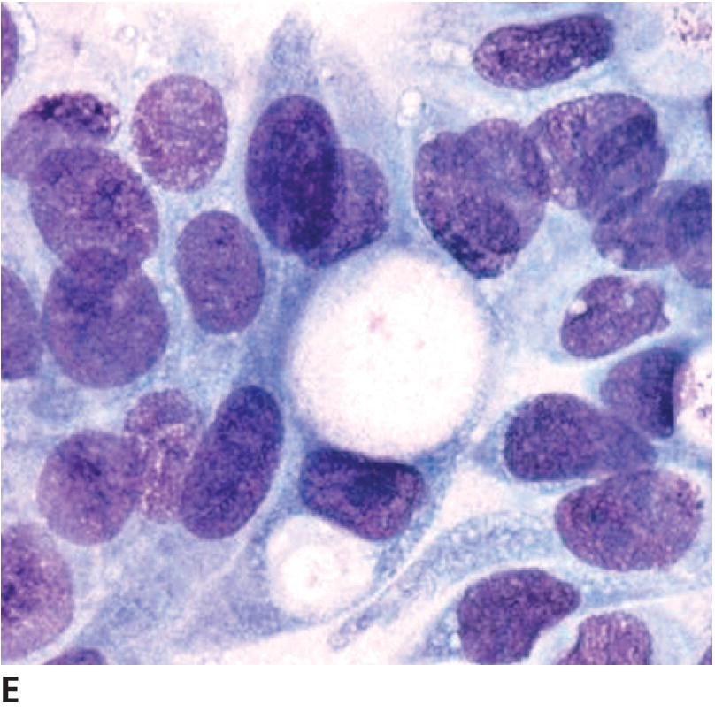 Micrograph displays signet ring–shaped UC cell in center with an unstained large single vacuole.