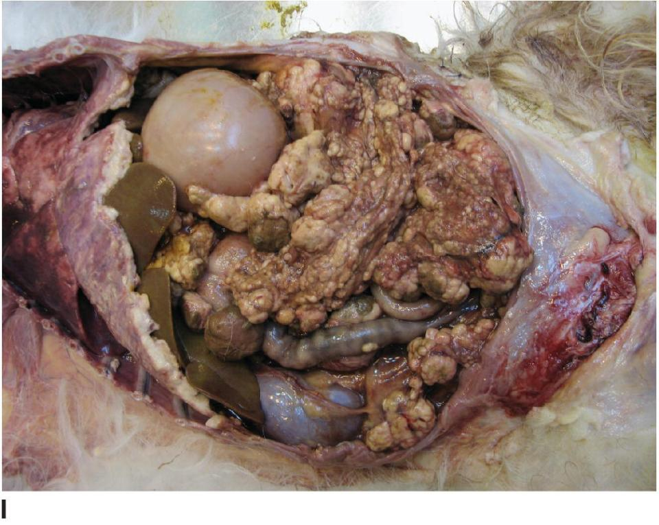 Photo of epithelial tumors of the ovary that exfoliate and disseminate through the peritoneal cavity as carcinomatosis and produce ascites.