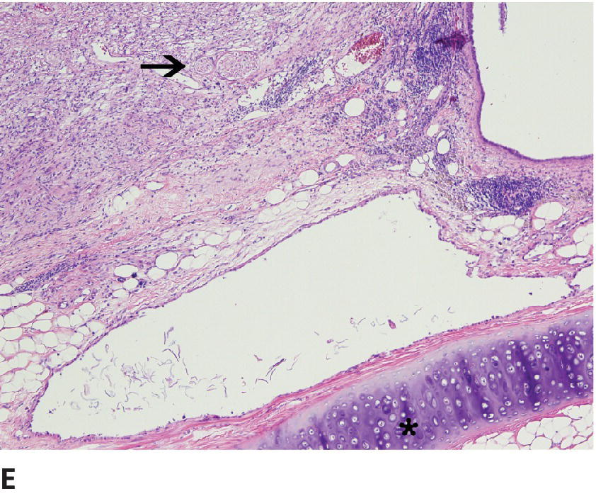 Micrograph of cysts in dog's ovary containing keratin shards lined by stratified squamous epithelium, plates of hyaline cartilage (depicted by asterisk), and nerve fibers (pointed by arrow).