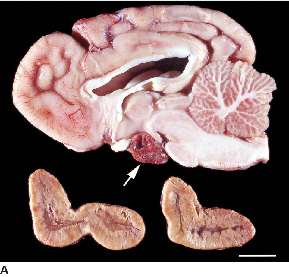 Photo of corticotroph adenoma (arrow) in hypophysis with bilateral adrenal cortical hyperplasia in dog, with hypothalamus being compressed by dorsally expanding pituitary adenoma.