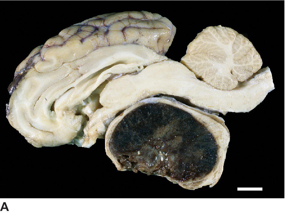 Photo of acidophil adenoma of ewe, displaying severe compression of pars distalis and overlying brain.