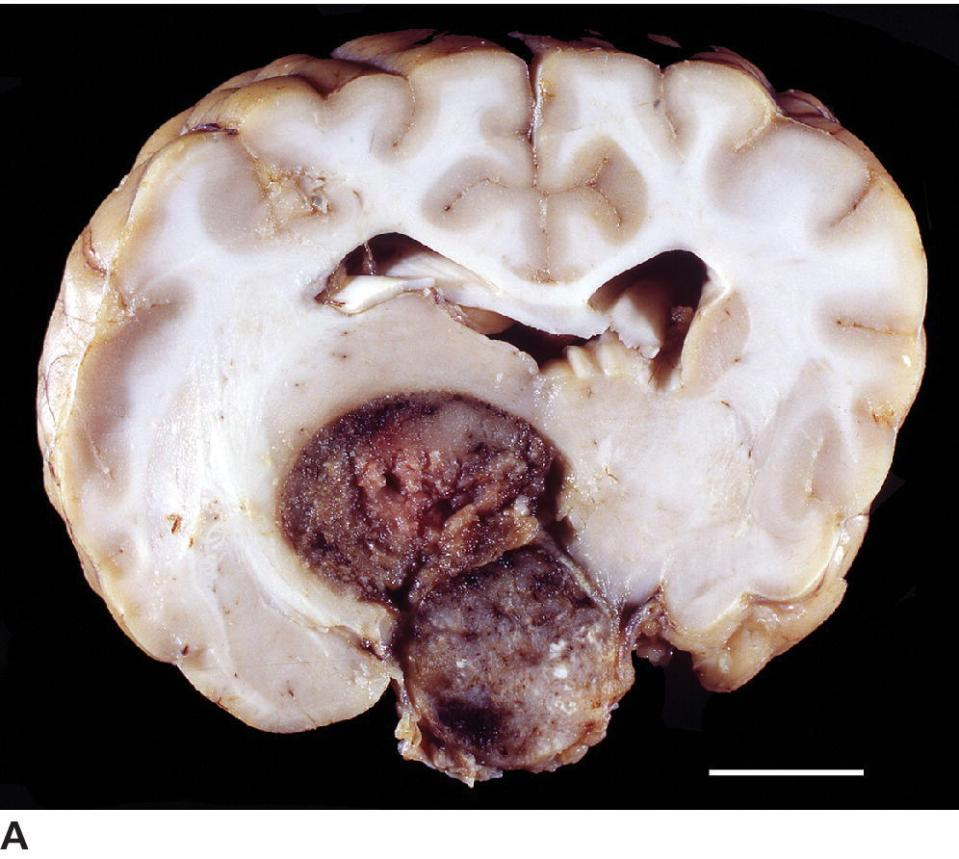 Photo of pituitary chromophobe carcinoma of a dog displaying extensive dorsal invasion into the brain.