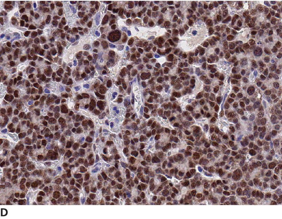 Micrograph displaying adrenal cortical carcinoma cells having marked nuclear positive staining.